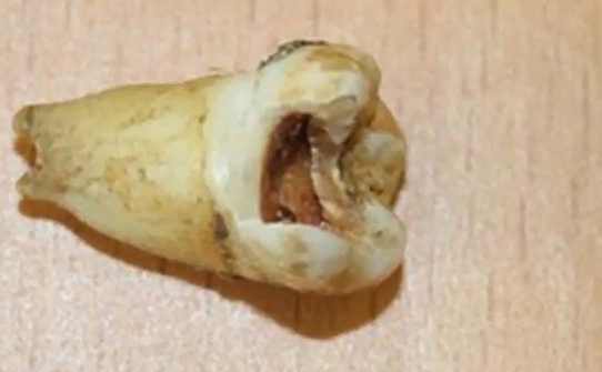 Screen Shot John Lennon's Tooth